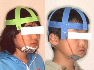 http://www.art-kyousei.jp/images/1005orthodontics-child3-1.jpg
